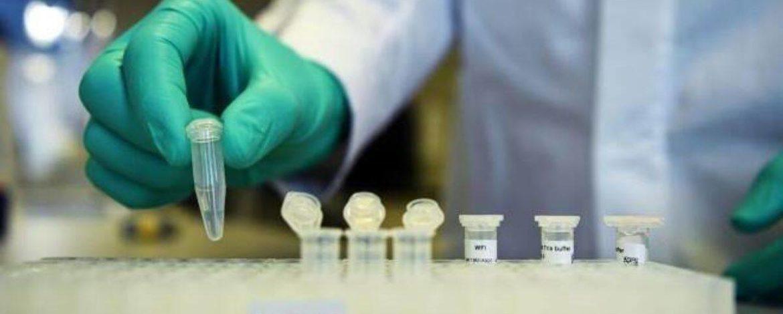 Cipla starts rapid antigen test units for identifying Covid-19